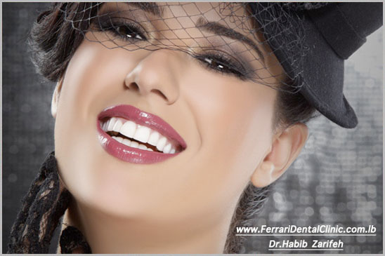 Hollywood Smile Cosmetic Dentistry beirut lebanon