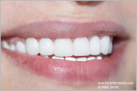 Hollywood Smile Cerec Veneers beirut lebanon
