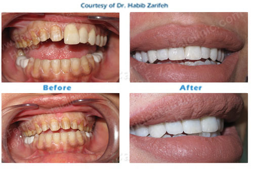 Hollywood smile Cerec veneers in Beirut Lebanon