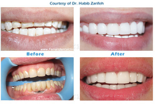 Hollywood smile Veneers in Beirut Lebanon