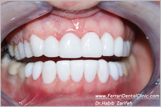 Veneers Hollywood Smile