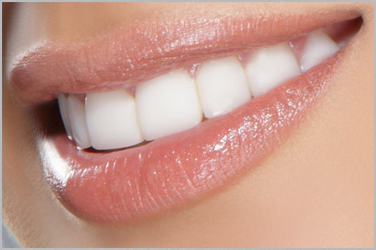 Laser bleaching Beirut Lebanon Hollywood Smile