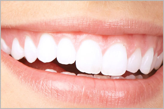 Laser Teeth Whitening Hollywood Smile