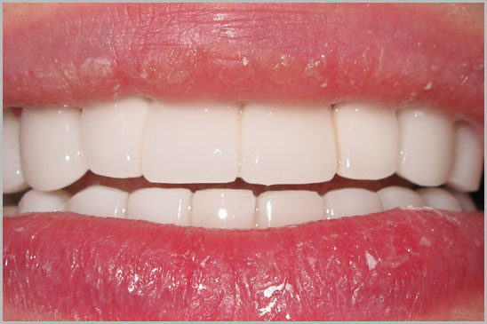 Zirconium Crowns Hollywood Smile